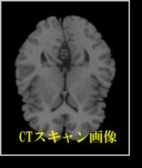 CTスキャン画像